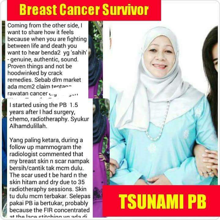 real testimoni from a breast cancel survivor_ marni wahab_ premium_beautiful_expert_ malaysia_harga premium beautiful termurah 2017_reAL testimonial from a breast cancer survivor2
