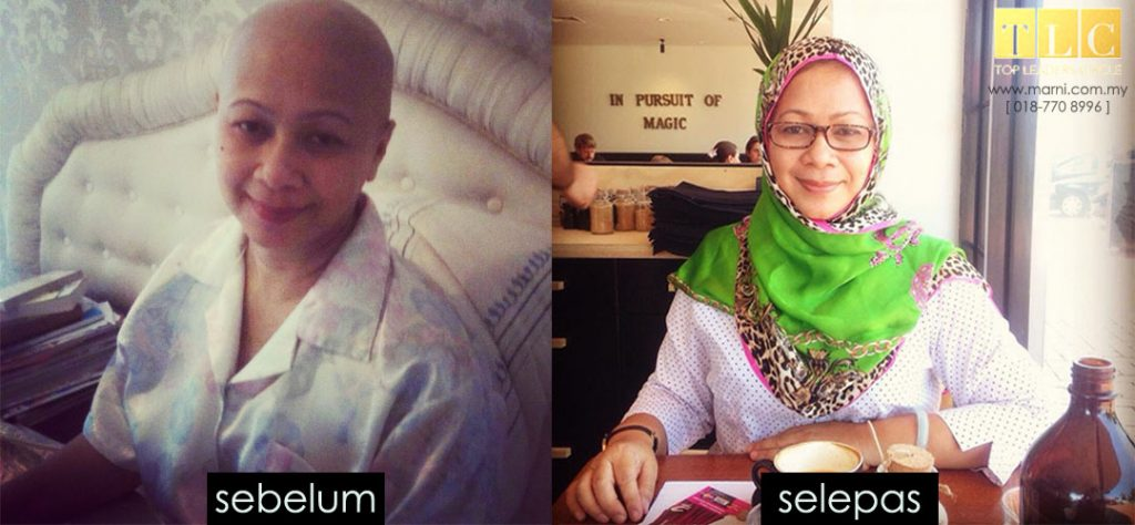 real testimoni from a breast cancel survivor_ marni wahab_ premium_beautiful_expert_ malaysia_harga premium beautiful termurah 2017_reAL testimonial from a breast cancer survivor3